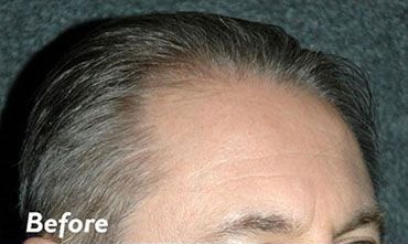 Hair Transplant Long Island Before
